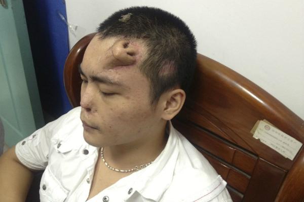 Китайские хирурги вырастили нос на лбу