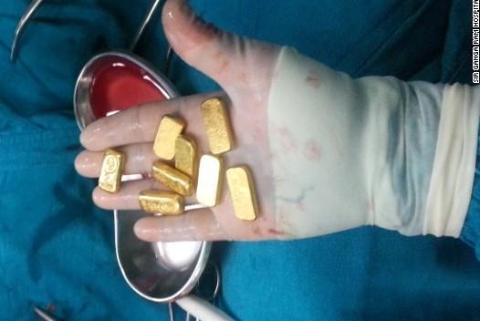 В желудке индийца нашли 12 золотых слитков