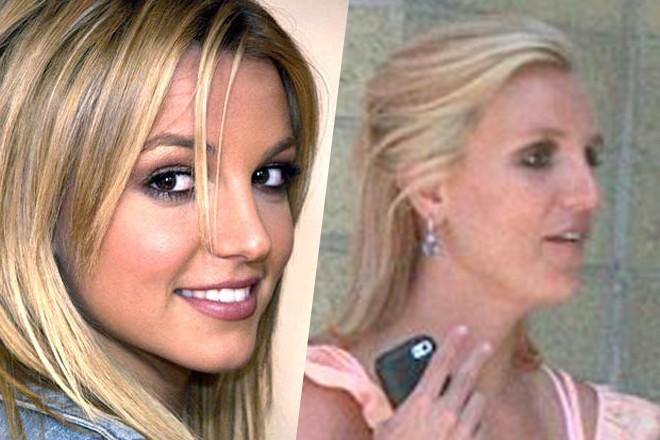 Что случилось с носом Бритни Спирс?
