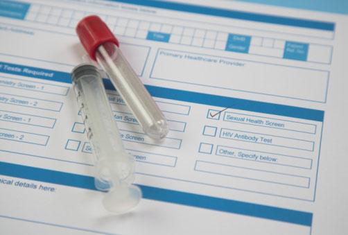Увеличивается количество больных ВИЧ
