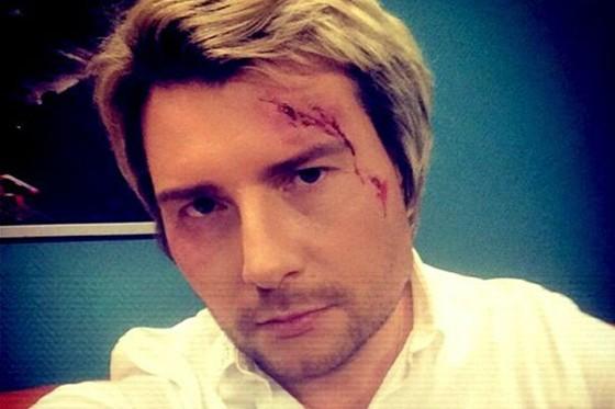 Николай Басков разбил голову на свадьбе дочки композитора Игоря Крутого