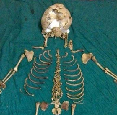 Индианка 36 лет носила скелет неродившегося ребенка
