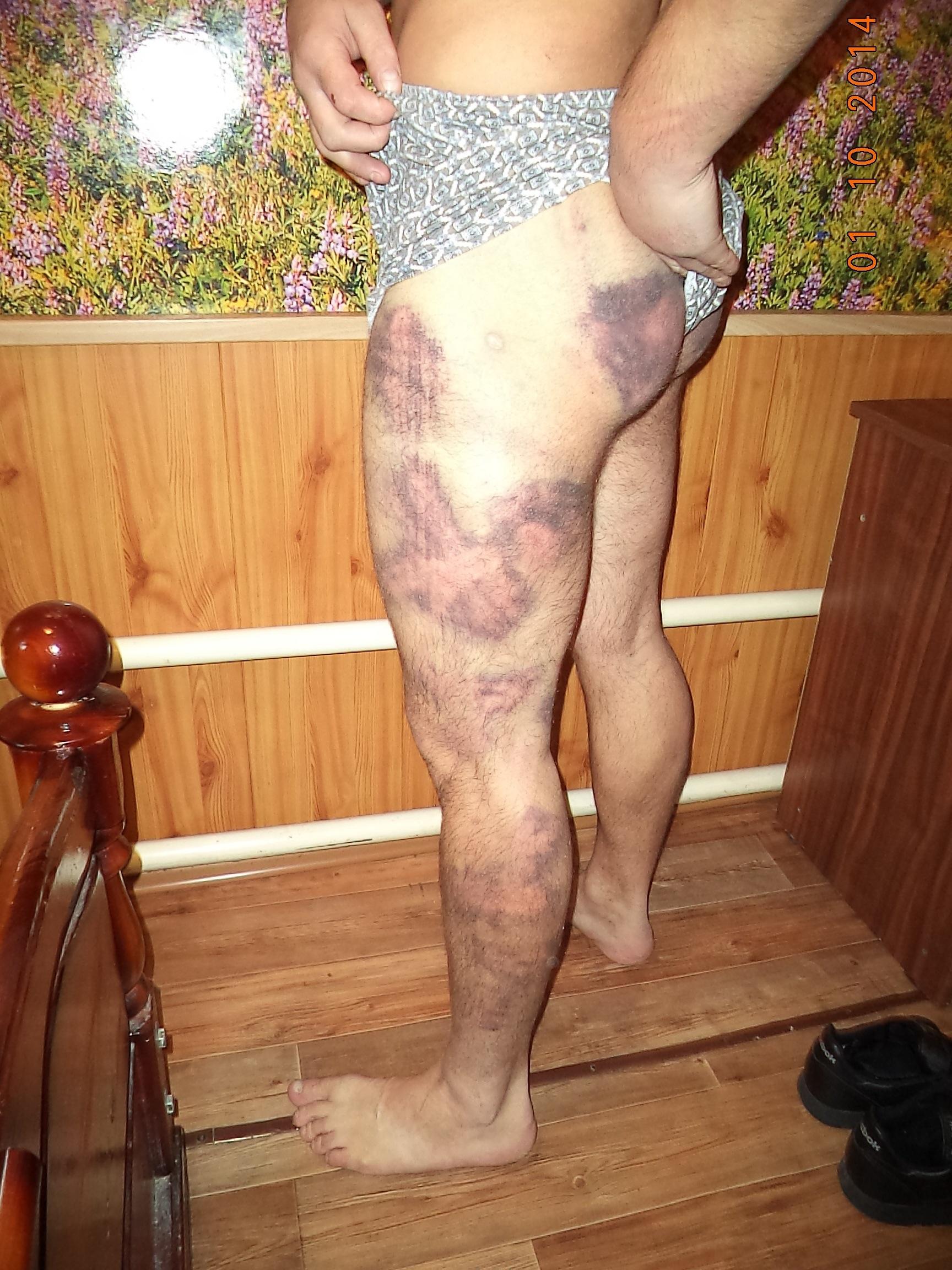Фото сексуальных издевательств девушки над девушкой 18 фотография
