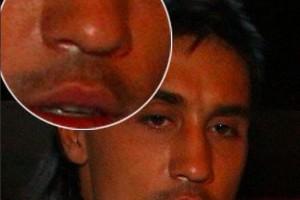 Тимати выложил фото ноздрей Билана и заявил, что Билан наркоман и не должен обманывать своих фанатов
