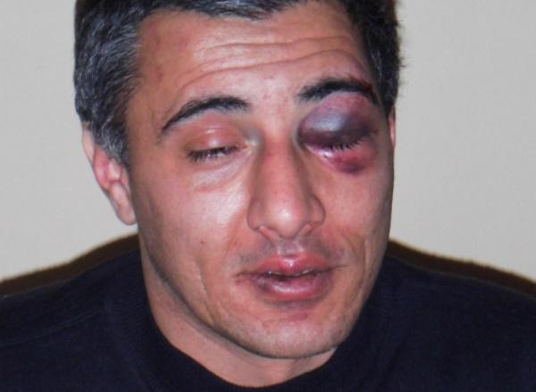 В Белгороде избили двух водителей автобусов