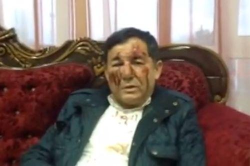 Лидер СР в Дагестане Омаров госпитализирован после избиения на Конференции