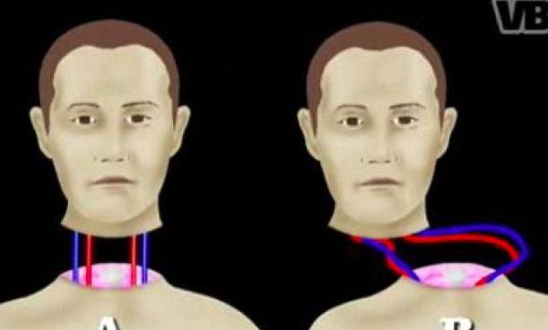 Пересадка головы станет возможна через 2 года