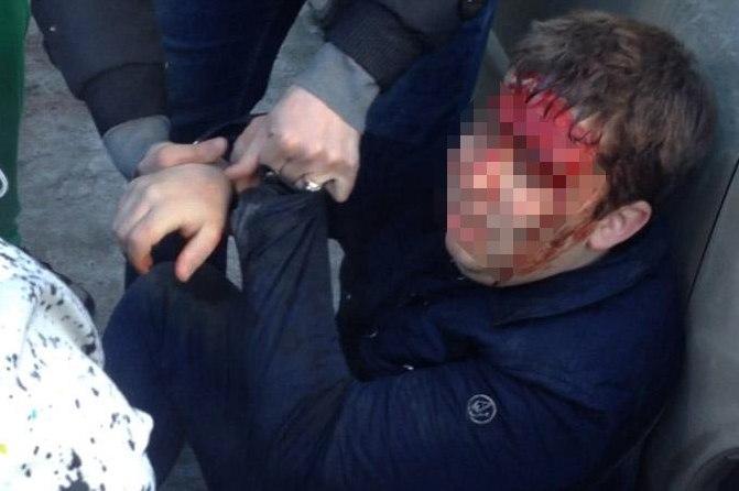 В Челябинске оперативники в штатском избили подозреваемого в сбыте наркотиков