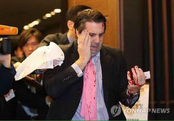 Кореец порезал посла США бритвой, протестуя против совместных учений