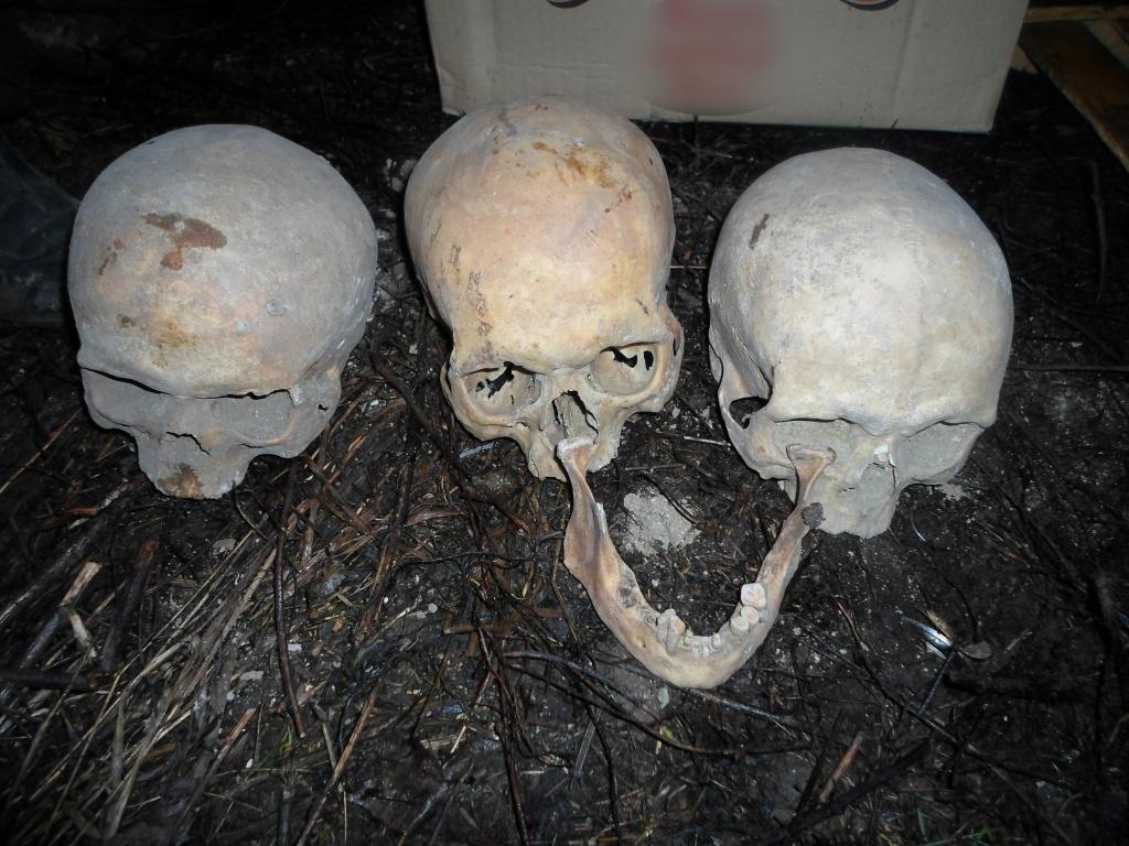 Мужчина обнаружил в своем саду 15 человеческих черепов