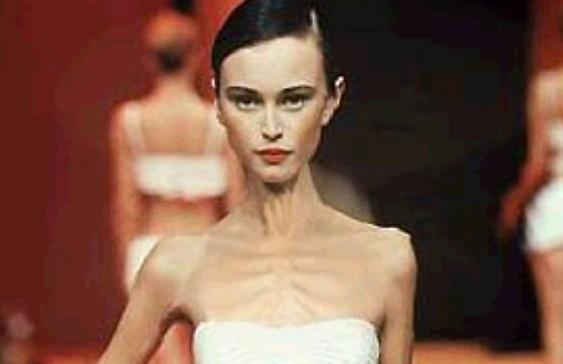 Во Франции запретили худощавым моделям выходить на подиум