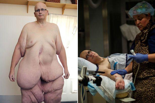 Самый толстый человек в мире похудел на три центнера ради возлюбленной