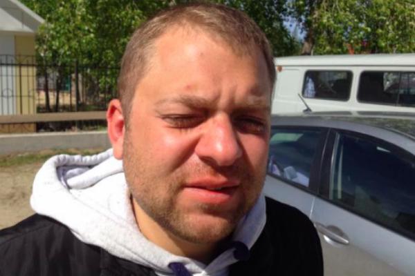 В ХМАО жестоко избили главу отделения «Справедливой России»