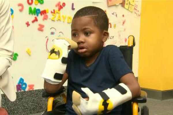 Восьмилетнему мальчику пересадили кисти рук