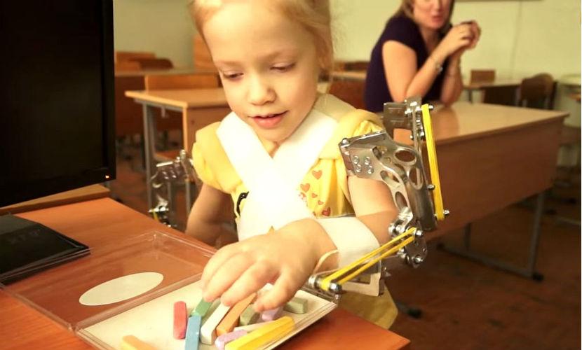 Врачи из Волгограда на Новый год подарили двум малышкам возможность двигать ручками