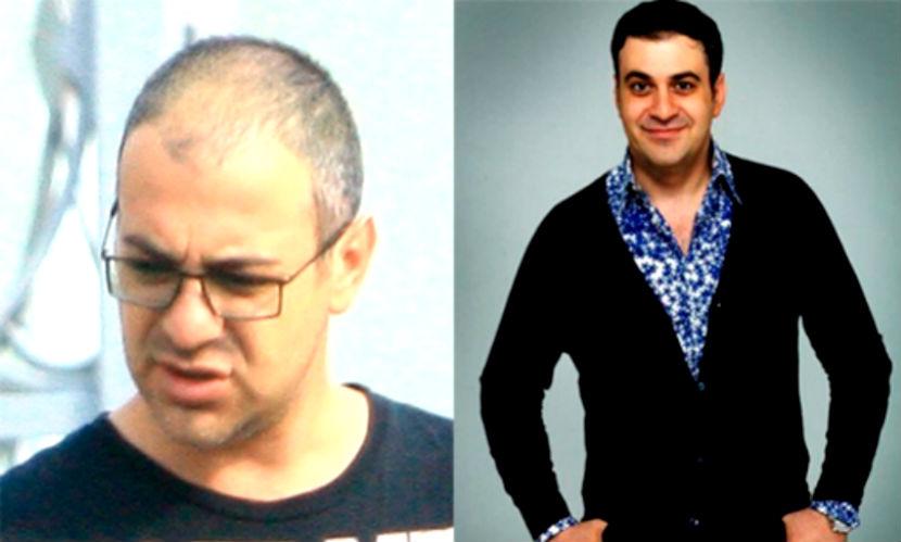 Гарик Мартиросян подает в суд за незаконную рекламу средства от облысения