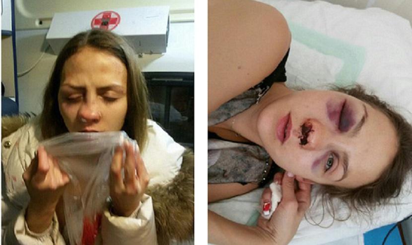 Житель Ставрополья избил москвичку за отказ в замужестве
