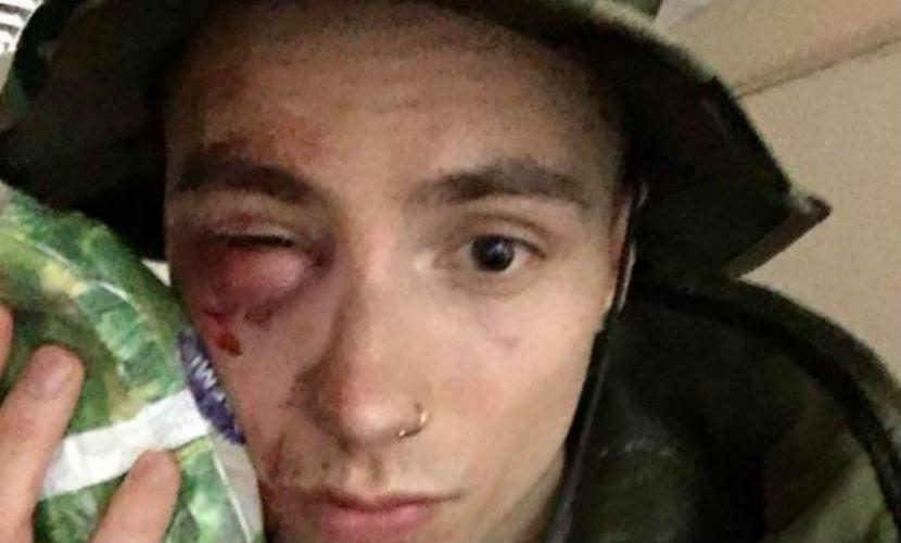 Солиста Quest Pistols избили в центре Киева за его одежду
