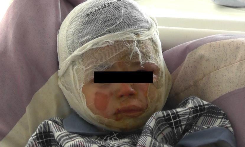 Коллектора, который покалечил двухлетнего малыша, обвинили в покушении на убийство