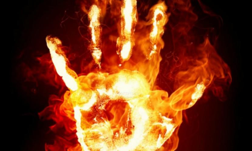 Акт самосожжения устроил мужчина на лестничной клетке на северо-востоке Москвы