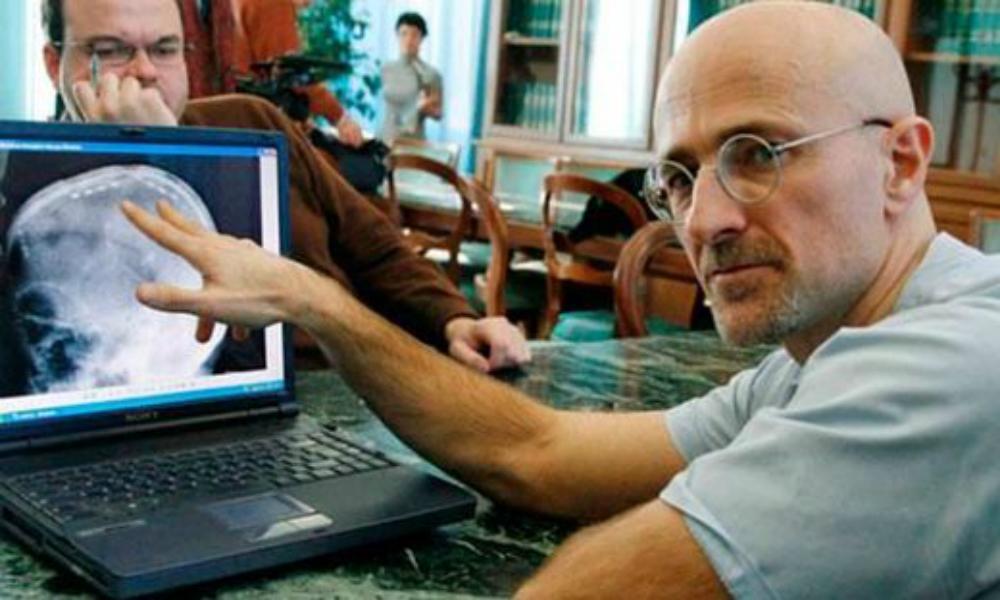 Итальянские врачи обозначили сроки проведения первой операции по пересадке головы