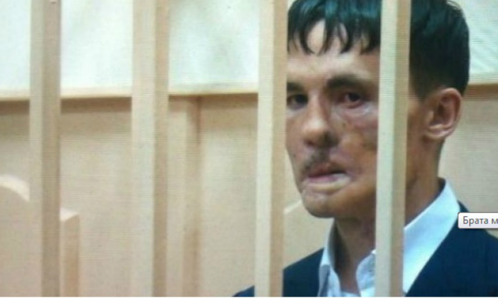 Изуродованного петардой брата мэра Владивостока заключили под домашний арест по делу о коррупции