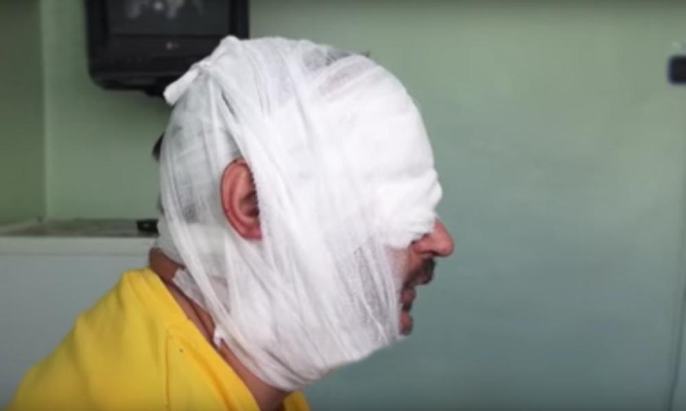 Российский журналист рассказал на видео о ранении во время