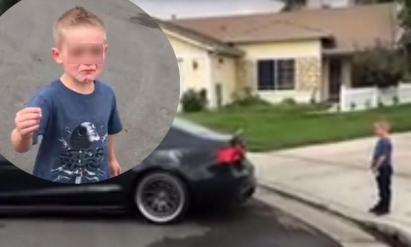 Отец снял на видео экстремальное удаление маленькому сыну зуба с помощью Audi S5