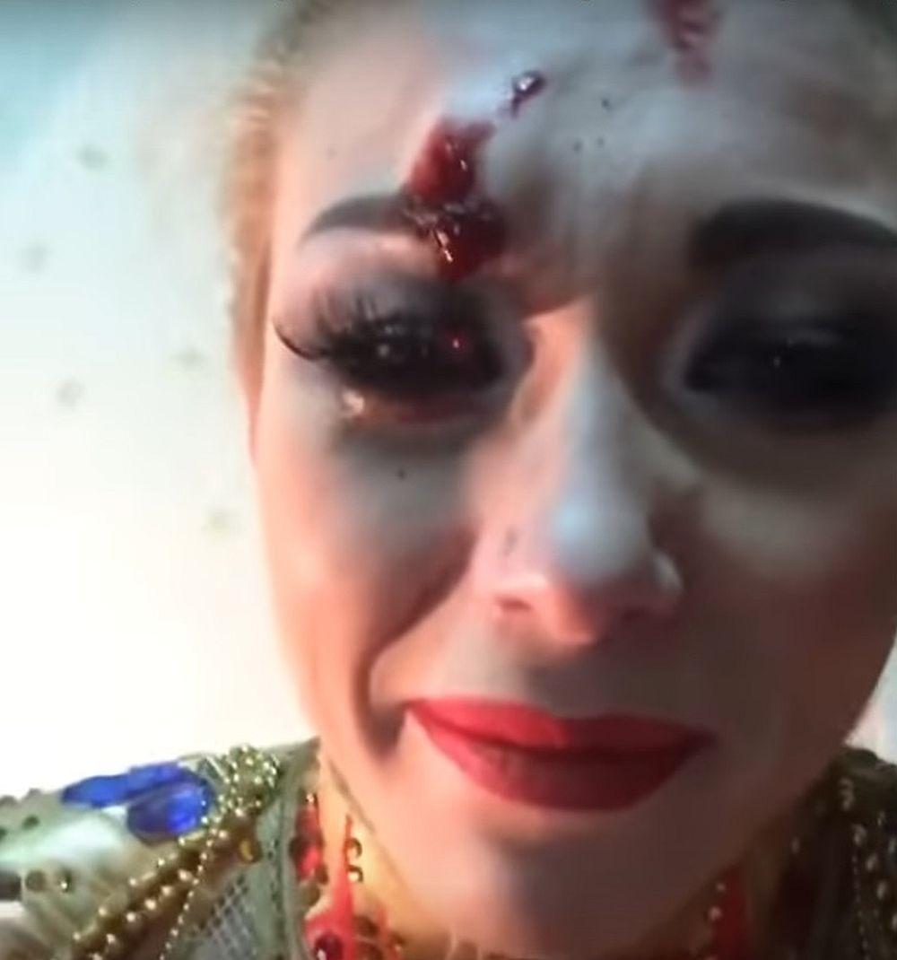 Дрессировщица Запашная разбила вКирове лицо