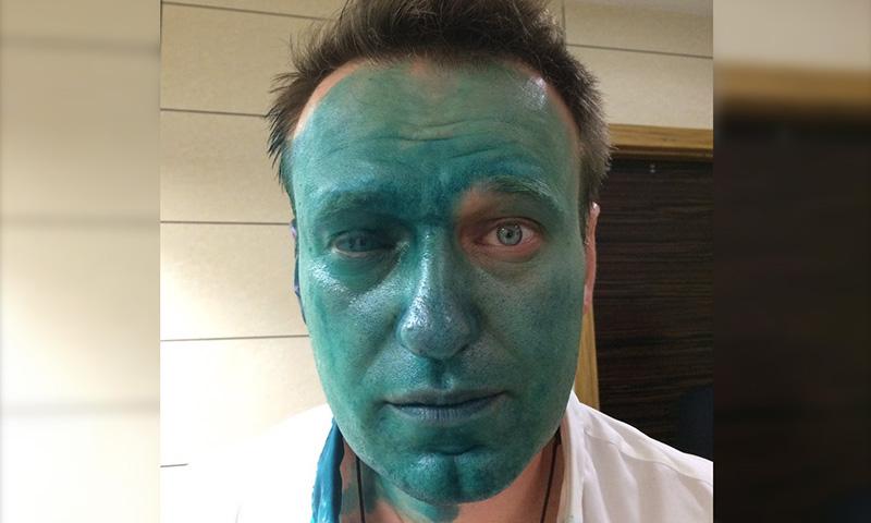 Облитому зеленкой Навальному вызвали
