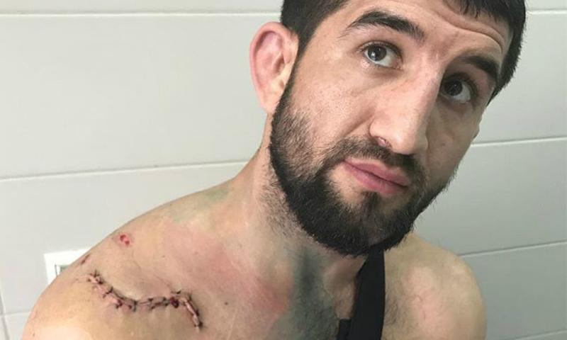 Сбитый машиной чемпион мира по боевому самбо Мирзаев записал видеообращение