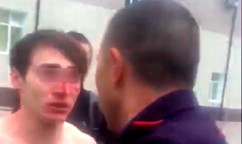 Инспектор ДПС подрался с молодежью и сломал парню нос в Верхней Пышме