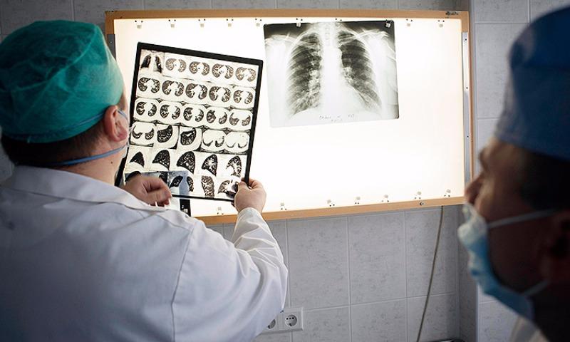 Чиновники Минздрава назвали болезни с высокой смертностью населения
