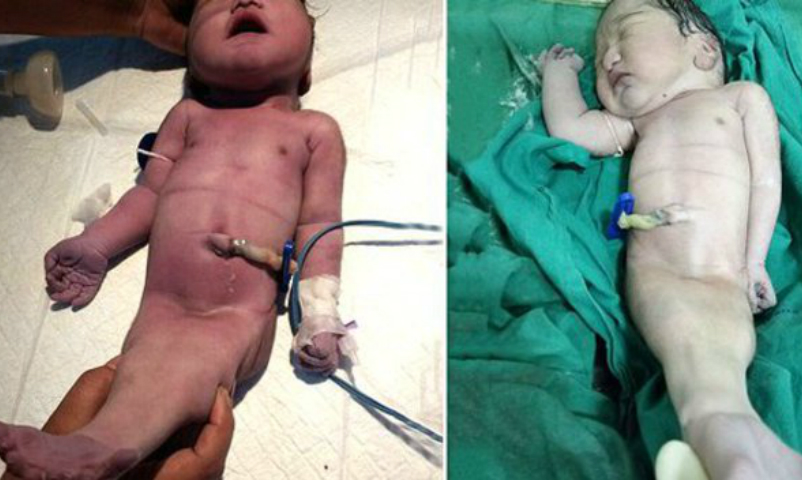 Бесполый ребенок-русалка появился на свет в Индии