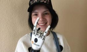 Маргарита Грачева, которой муж отрубил руки, вернулась из Германии с двумя протезами