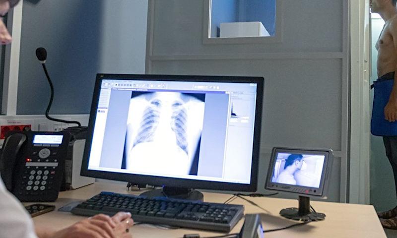 В поликлиниках Москвы внедрят новый метод диагностики рака лёгких