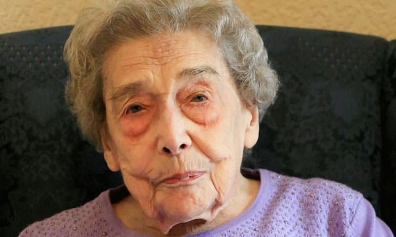 106-летняя женщина раскрыла простой секрет долгой жизни