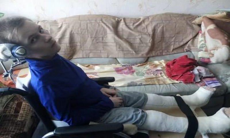 В Кургане подростка-инвалида не пустили в самолет из-за гипса на ногах