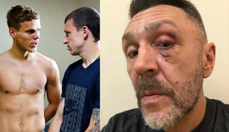 «На пути Кокорина встретил?»: Шнурова избили