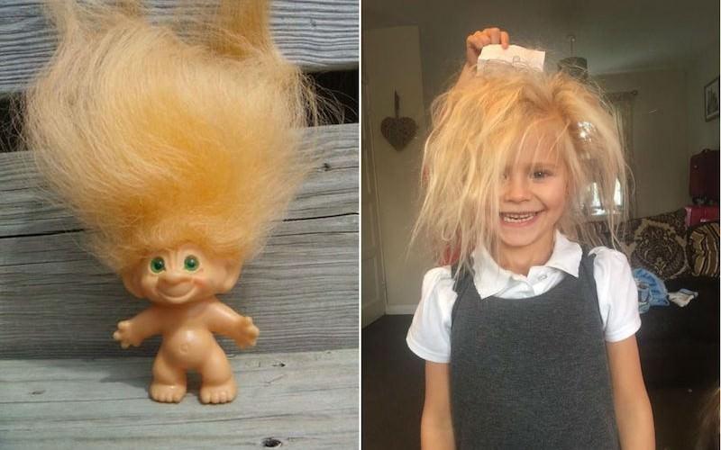 Девочку с редким синдромом волос назвали мультяшным троллем