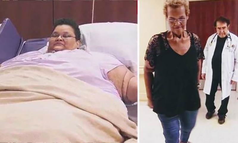 Весившая 340 кг женщина смогла похудеть в 5 раз