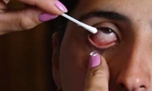 Девушка вместо слёз плачет кристаллами: врачи в тупике