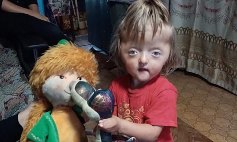 Девочку-инвалида не принимают в детский сад, считая, что она будет пугать детей