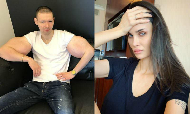 Алана Мамаева отвела Кирилла «Руки-базуки» на операцию по удалению синтола