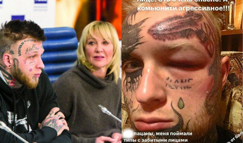 «Оскорбил культуру»: сына Елены Яковлевой избили за удаление татуировок с лица
