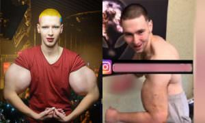 Кирилл Терешин показал сдувшиеся «руки-базуки» после операции