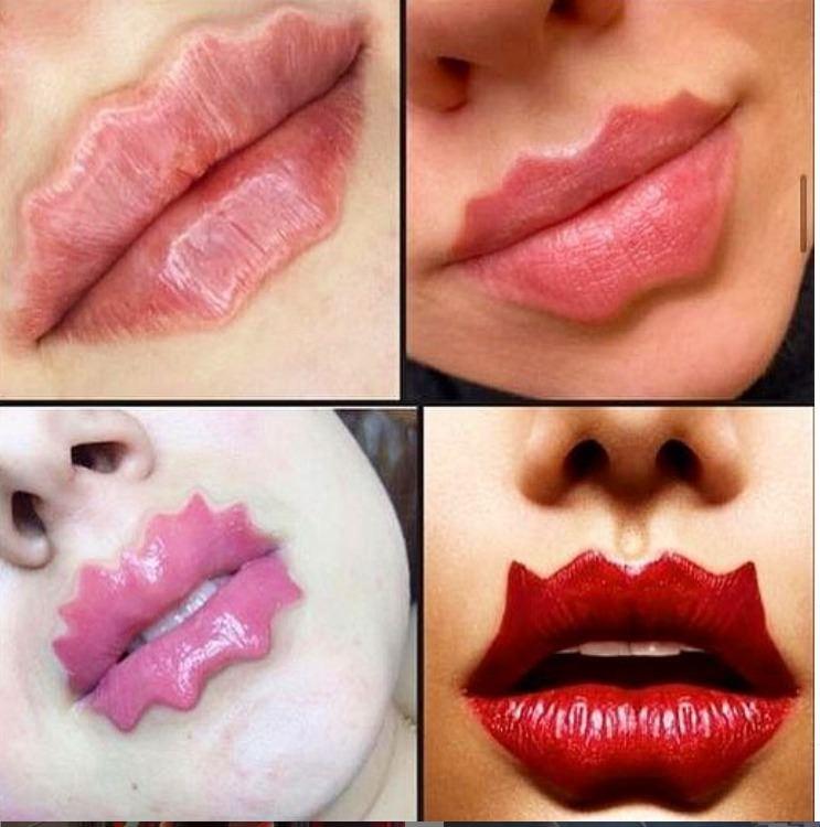 «Это полный п*!»: Мария Погребняк разнесла тренд на «губы-осьминоги»