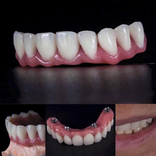 All on 4 - Имплантация и протезирование зубов