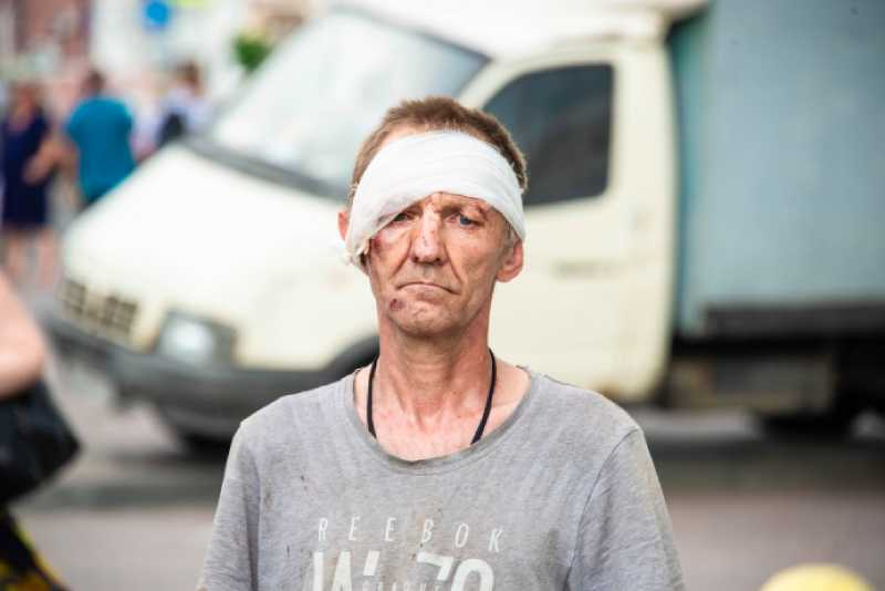 Экономист нашел у бедности в России черты генетических заболеваний