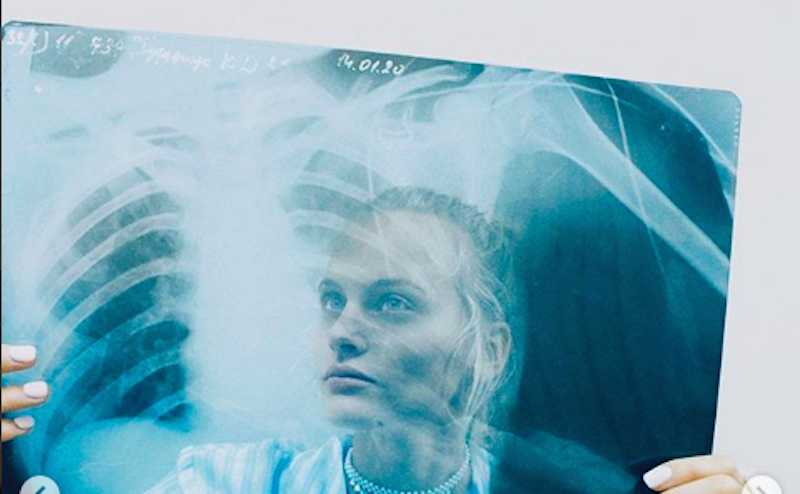 «Знатно отдохнула»: выпавшая из окна внука Михалкова модель выписалась из больницы